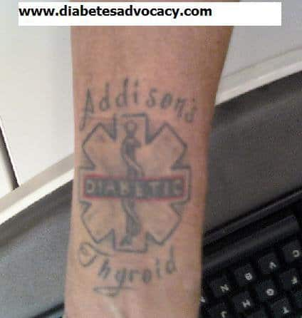 addisons diabetes tattoo