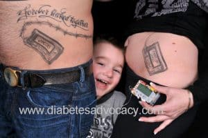 insulin pump tattoo