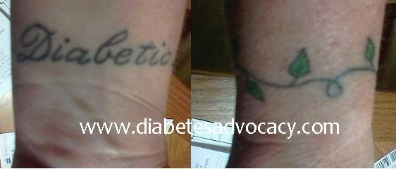 diabetes wrist tatoo
