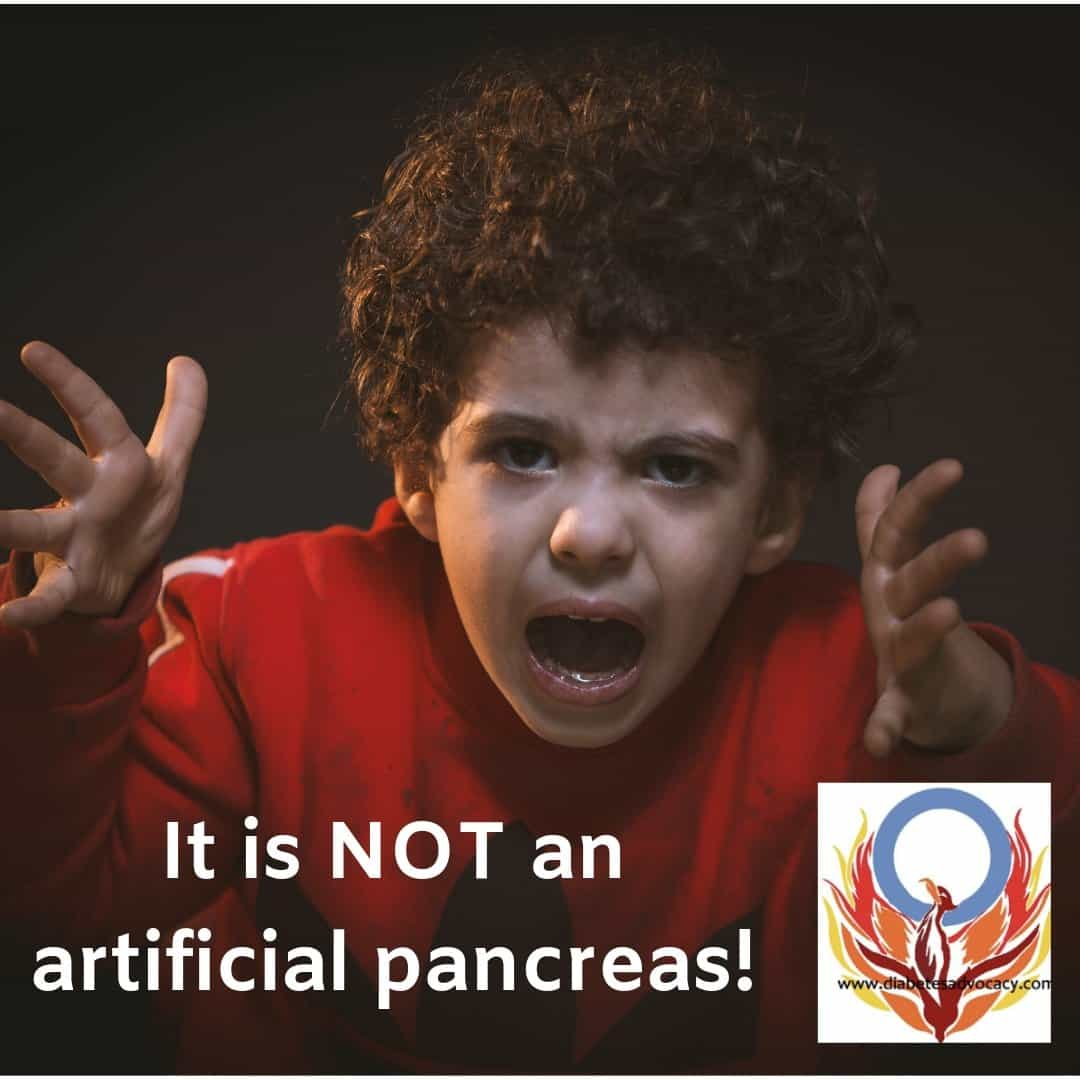 It is NOT an artificial pancreas