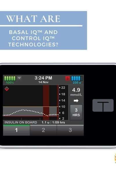 Basal IQ and Control IQ technologies